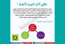 Photo of ماهي آلام الجيوب الأنفية