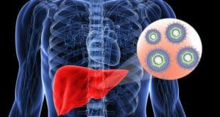 Hepatitis-what-is-it