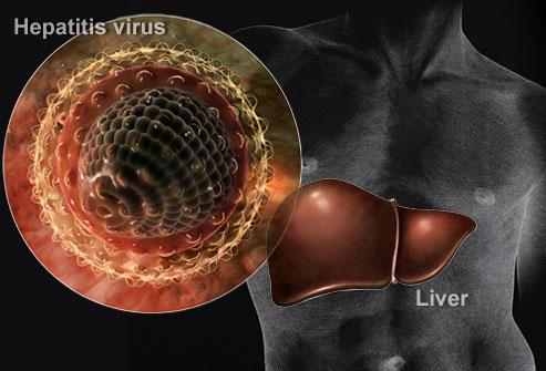 hepatitis_virus_collage