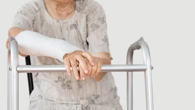 صورة كسور كبار السن تزيد من خطر الوفاة المبكرة