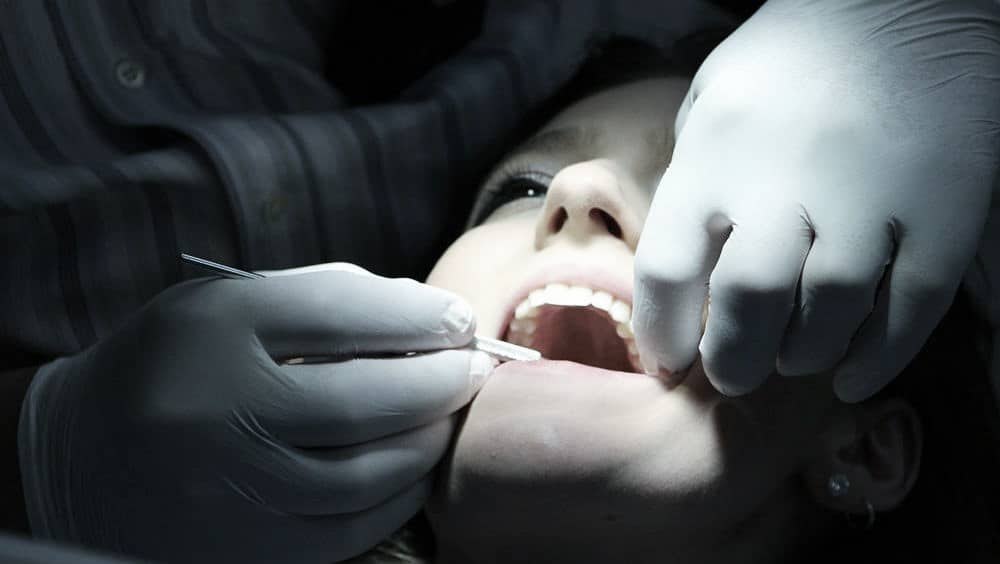 oral bacteria stroke