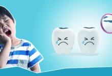 Photo of تسوس اسنان الاطفال: الاسباب والاعراض والوقاية