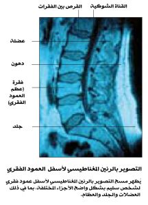 MRI of the lower spine