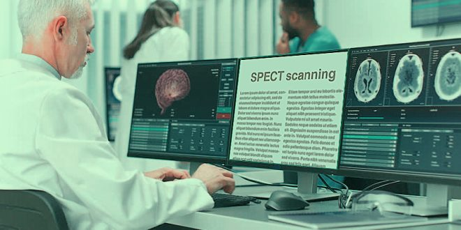 SPECT scanning