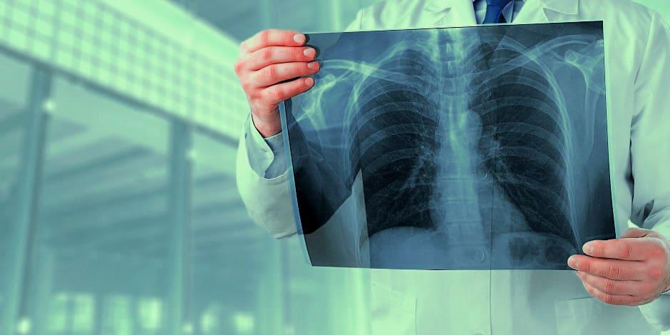 contrast-x-rays1