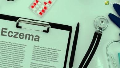 الإكزيما Eczema