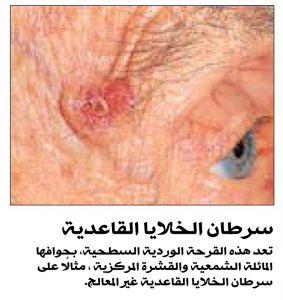 سرطان الخلايا القاعدية