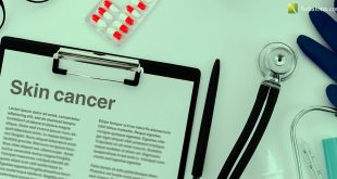 Skin cancer سرطان الجلد