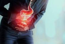 Photo of 10 علاجات بسيطة لتخفيف حموضة المعدة