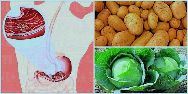 علاج قرحة المعدة بالاعشاب صحتنا