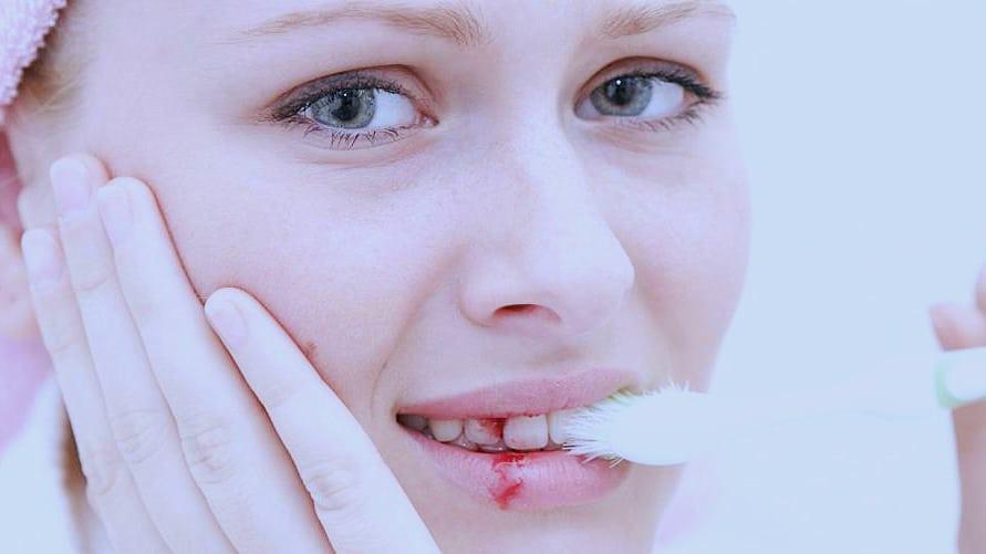 علاج مرض الاسقربوط بالاعشاب