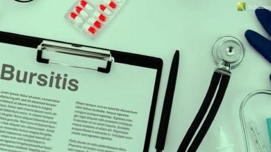 التهاب الجراب Bursitis