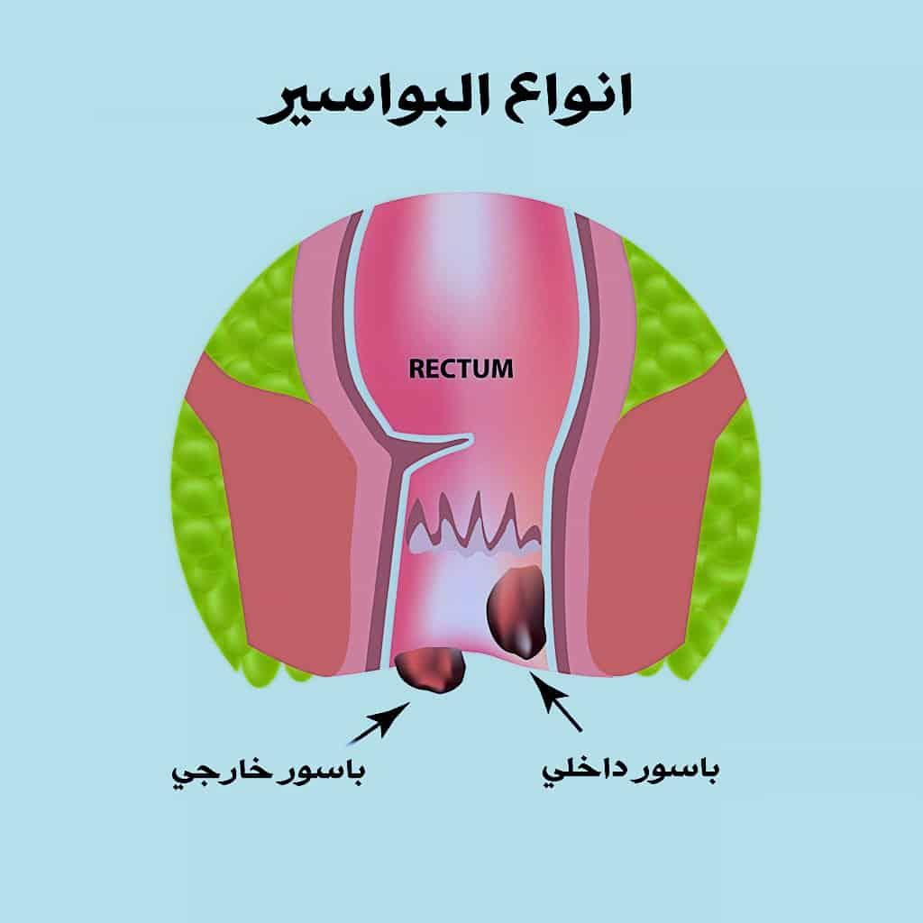 شكل البواسير الخارجية بالصور الحقيقية صحتنا