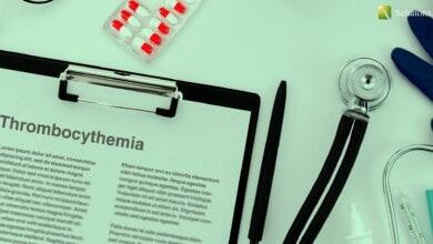 كثرة الصفيحات Thrombocythemia