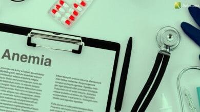 الانيميا Anemia