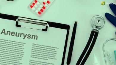 تمدد الأوعية الدموية Aneurysm