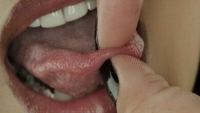 Bumps under the tongue