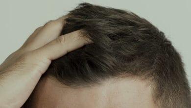 افضل فيتامين لنمو الشعر